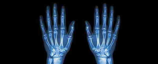 röntgen görüntüsü hipotezi ile ilgili görsel sonucu